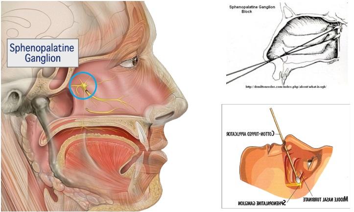 Sphenopalatine ganglion anatomy