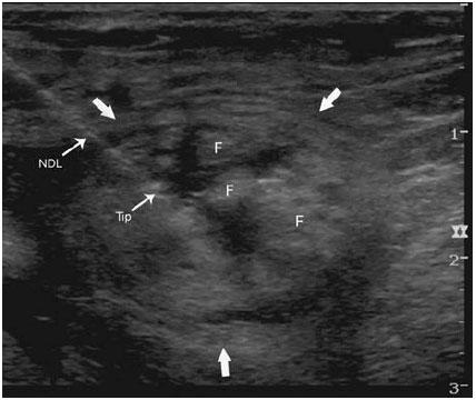 Ultrasound-image