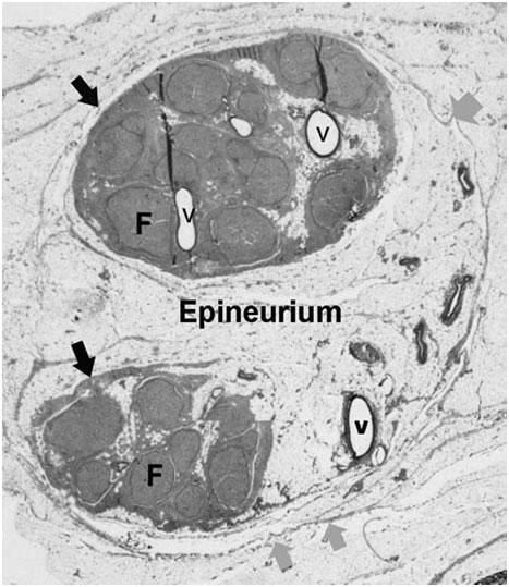 epineurium